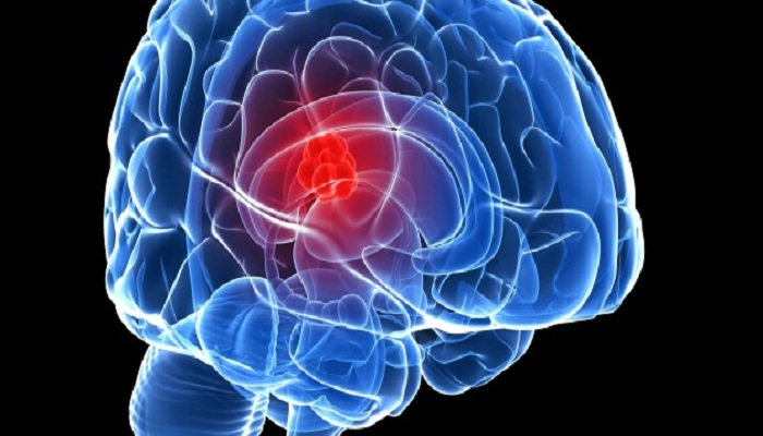 Signs of Brain Tumor