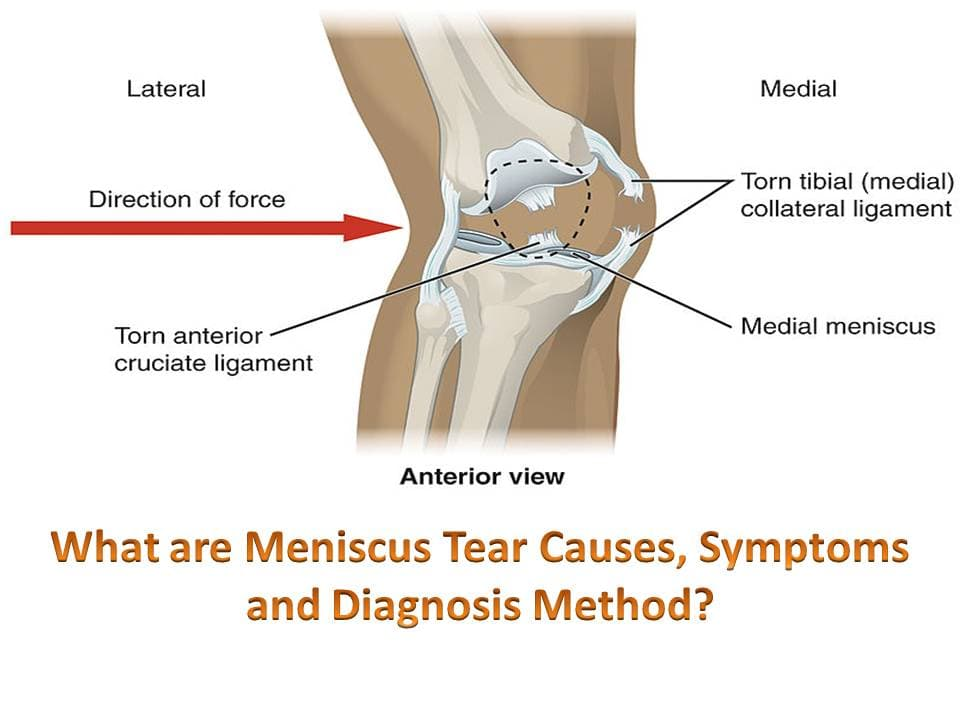 Meniscus Tear Causes, Symptoms and Diagnosis Method