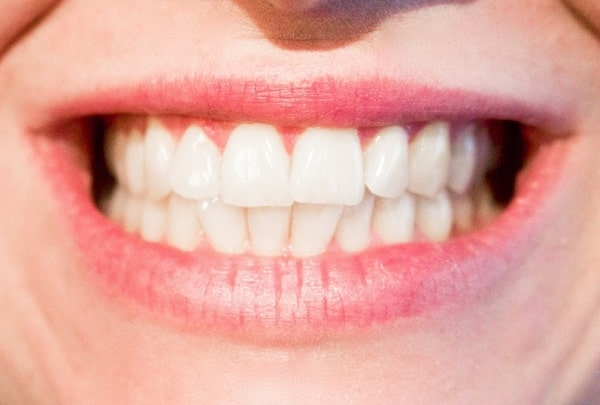 The Popularity of Veneers for the Ideal Smile