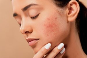 Hormonal Acne Natural Treatments